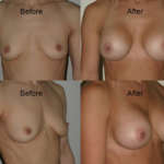 before and after photo of a woman post breast enlargement surgery