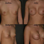 breast augmentation chicago