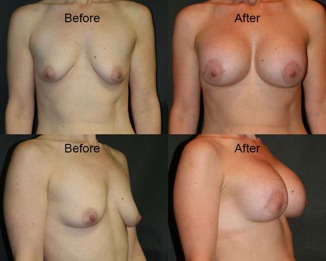 Before and after photo of a woman after undergoing breast augmentation