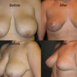 Before and After photo of Dr. Placik's patient after undergoing breast enlargement surgery